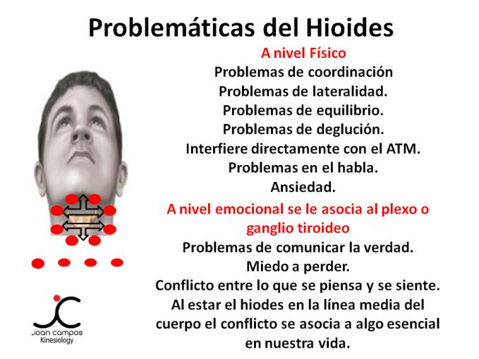 Corrección Hioides