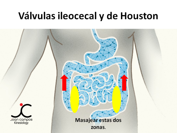 Válvulas ileocecal y de Houston